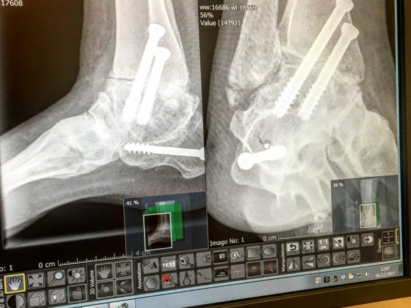 Xray-ankle-fusion
